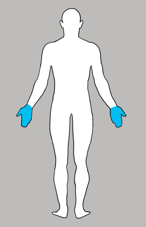 7. Руки боль, люди, тело