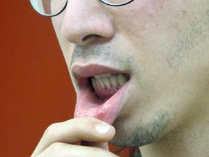 Ativista exibe ferimentos na boca (Foto: Marcelo Mora/G1)