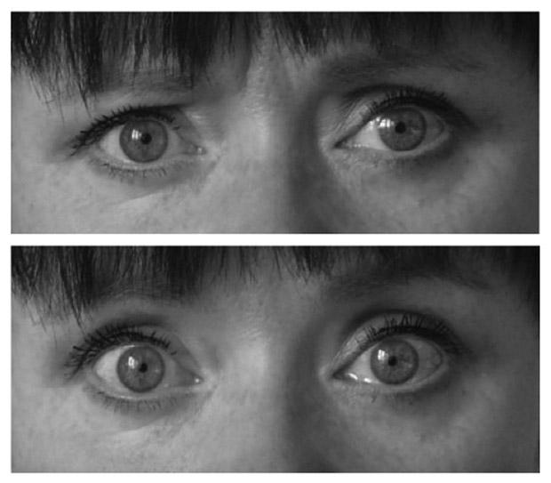 Na primeira imagem, olhos de uma pessoa consciente; na segunda, em estado de hipnose (Foto: Universidade de Turku/Divulgação)