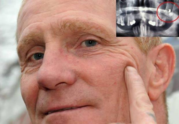 Em 2011, o britânico Tommy Bennett  descobriu após realizar um raio-X que viveu por mais de 40 anos com um chumbinho alojado em sua mandíbula. Bennett, que mora em Washington, na Inglaterra, havia se submetido a exames de rotina antes do tratamento odontológico quando os técnicos descobriram o projétil. (Foto: Reprodução)