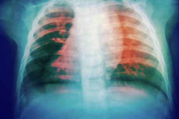 Tuberculosis is spread when a person with an active infection coughs or sneezes, and another person breathes in the germs. Most people are infected by someone they spend a lot of time with, like a family member or coworker. Photo: Toeytoey2530/Getty Images/iStockphoto