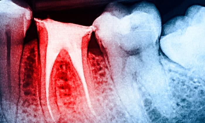 teeth-roots