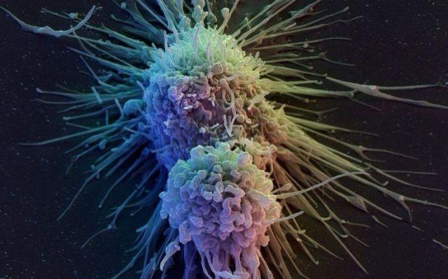 «Αν ο καρκίνος είναι επιθετικός και ο ασθενής άνω των 60 τον αφήνουν να πεθάνει»
