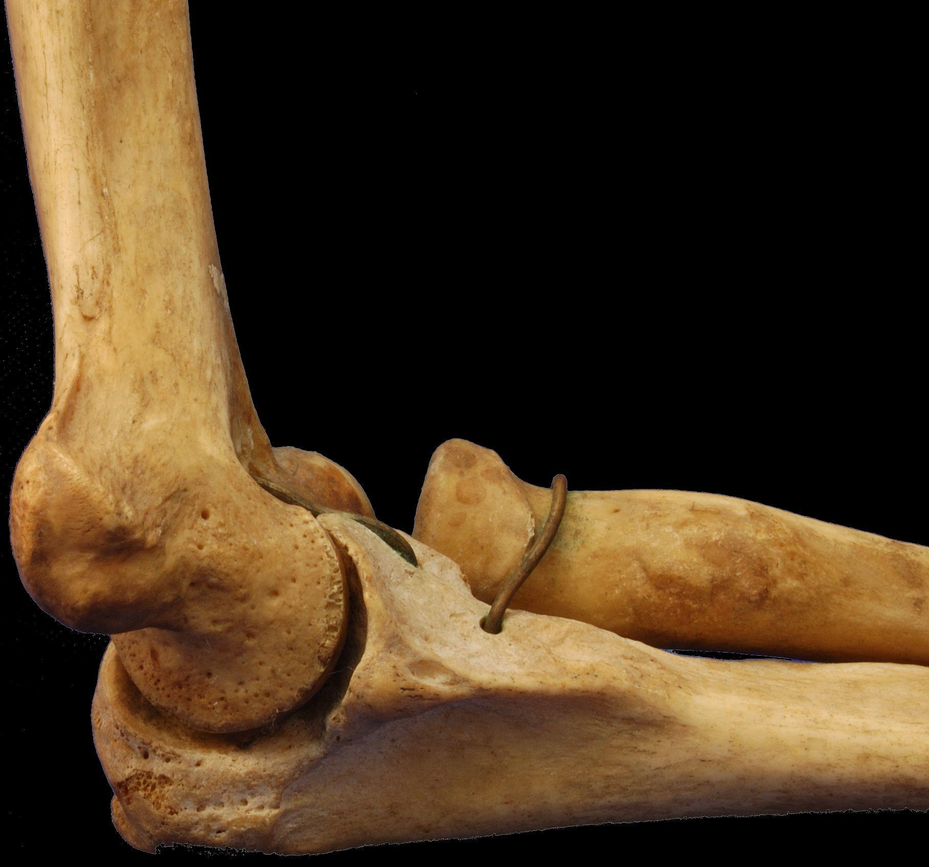 What Is Vanishing Bone Disease Woman S Arm Disappears