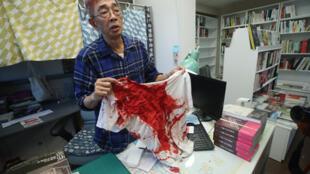 香港铜锣湾书店前店长林荣基2020年4月21日在台北遭不明男子泼漆,造成林荣基头部、衣裤都是红漆污渍。图為林荣基22日在书店受访,展示衣服上的红漆。