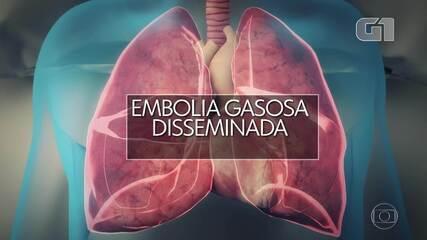 VÍDEO: O que é a embolia gasosa disseminada de Paulo Gustavo?