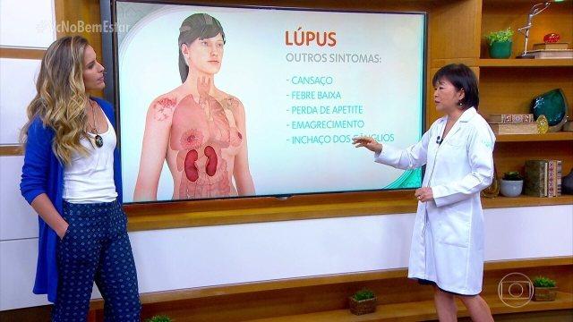 Lupus ist eine Autoimmunerkrankung