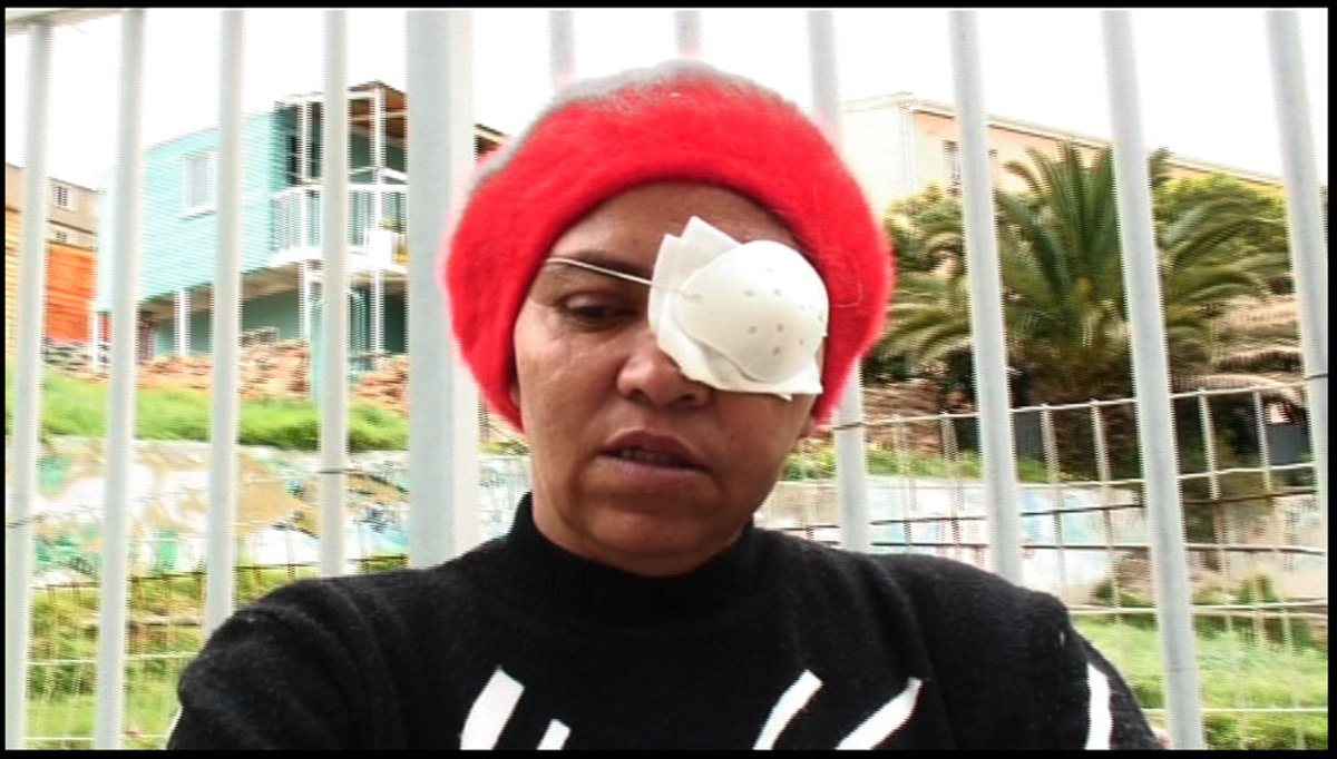 Another victim who lost an eyes, Auriol Cloete, and told of other four people whom the police had taken they eyes from them and apparently these people did nothing to suffer such a costly fate