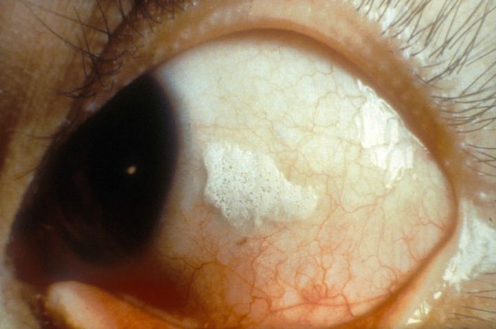 Bitot S Spots Are An Indication Of Vitamin A Deficiency Note The Typical