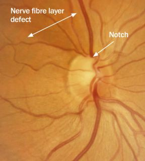 Image result for Focal notching: