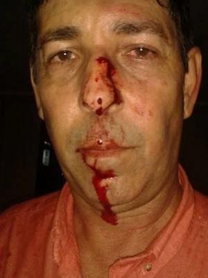 Secretário Clodoaldo Cabral foi agredido nesta quinta (13), em Natal (Foto: Clodoaldo Cabral/Arquivo pessoal)