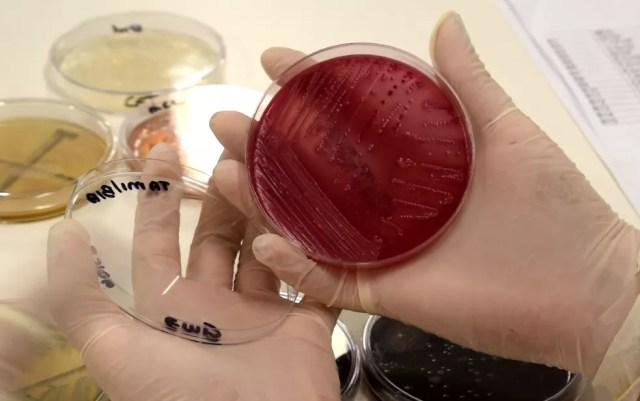 Amostras de insetos foram analisadas em laboratório de universidade de Campinas e apontaram alta contaminação. (Foto: Patrícia Teixeira/G1)