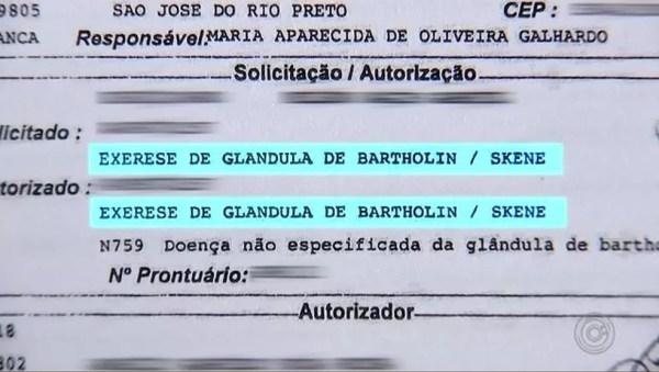 Solicitação da médica foi para retirada de uma glândula da paciente da Santa Casa de Rio Preto (SP) — Foto: Reprodução/TV TEM