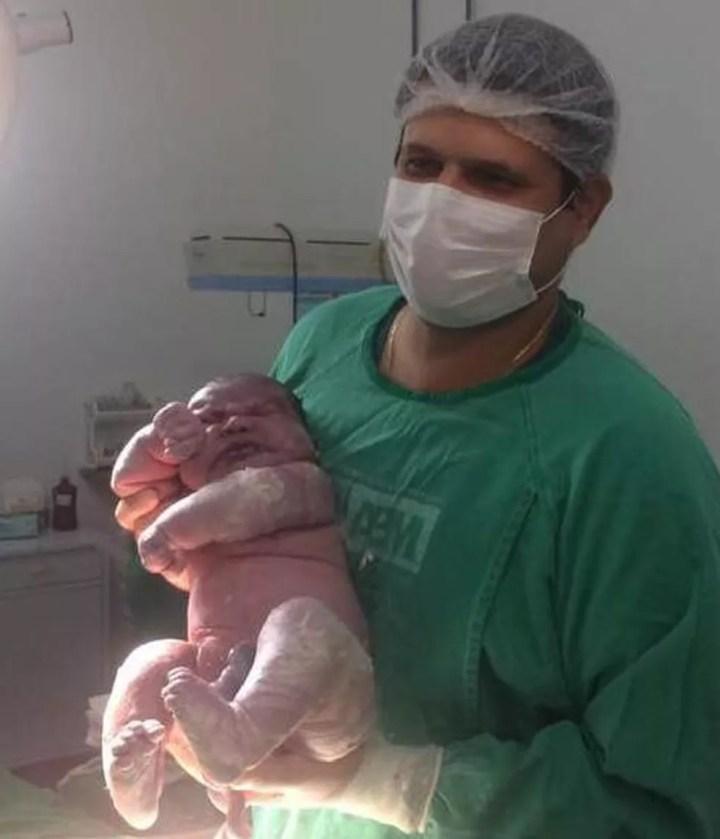 Bebê nasce com mais de 6kg em hospital de Maracaju e surpreende médico. — Foto: Tudo MS