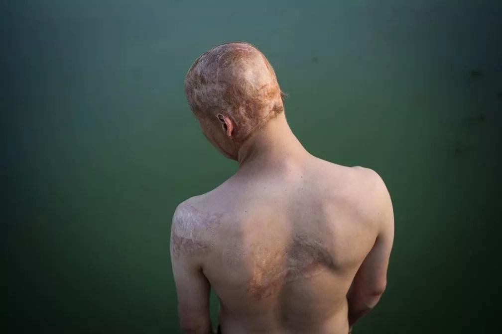 Lyosha sofreu queimaduras na cabeça, ombros e braços — Foto: Pavel Volkov/BBC