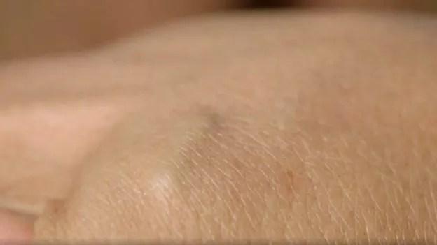 O microchip é implantado debaixo da pele, entre o polegar e o indicador (Foto: BBC)
