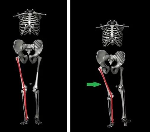 Movimento de agachamento unipodal. Repare, na foto da  direita, no membro direito, na qual há uma inclinação do fêmur   na direção medial.