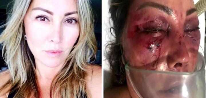 Elaine Perez Caparroz antes e depois das agressões. Ela terá de fazer cirurgias para reconstruir a face por seis meses. — Foto: Reprodução/TV Globo