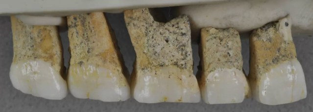 Dentes encontrados na caverna de Callao, nas Filipinas (Foto: CALLAO CAVE ARCHAEOLOGY PROJECT/ Divulgação)