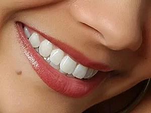 Lente de contato para dentes (Foto: Divulgação)