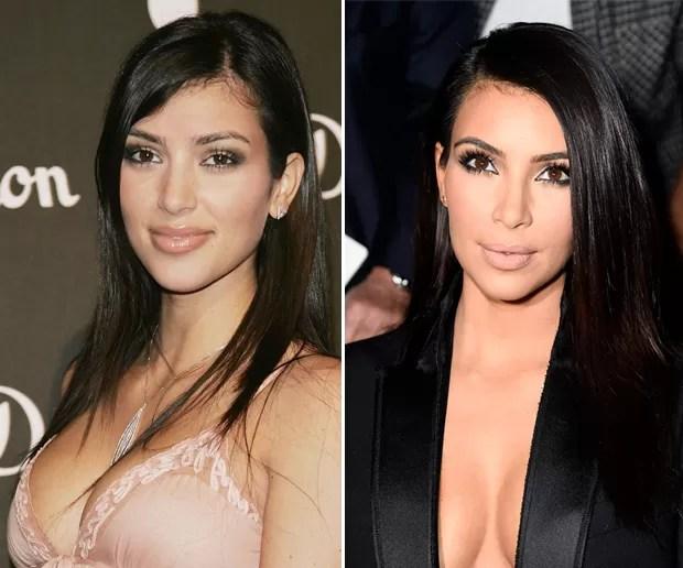 Resultado de imagem para kim kardashian antes e depois