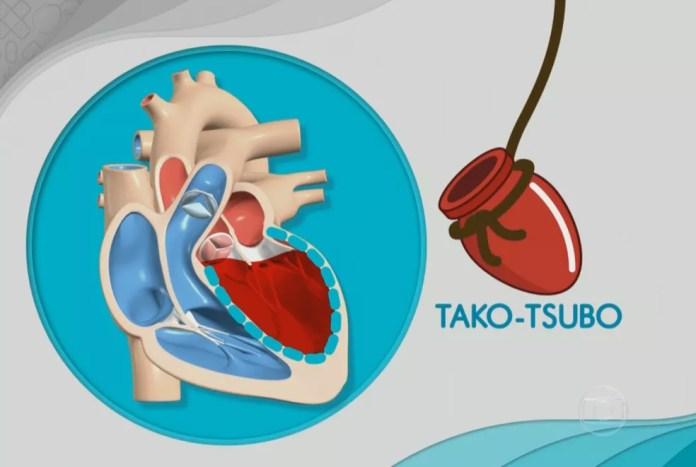 A síndrome do coração partido, ou tako-tsubo, ocorre após um grande estresse emocional, como a perda de uma pessoa próxima ou um assalto (Foto: Reprodução/Bem Estar)