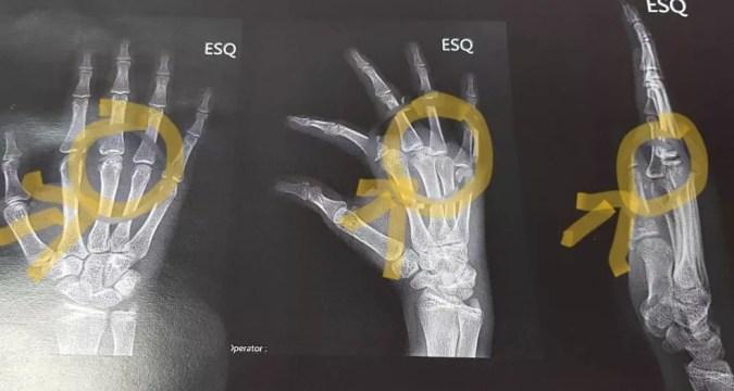 Adolescente teve ossos fraturados em torção — Foto: Roque Heerdt/Divulgação
