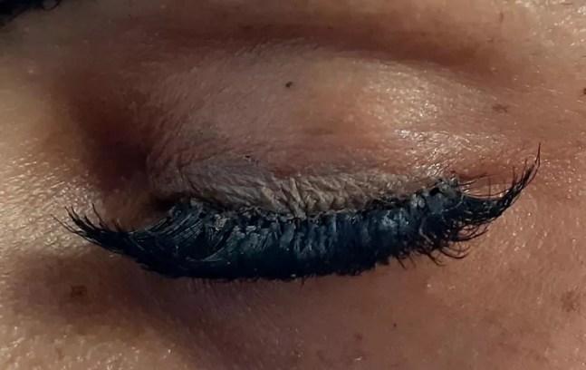 Mulher sofre lesões nos olhos depois de colocar cílios postiços em clínica de estética em Porto Velho — Foto: Facebook/divulgação