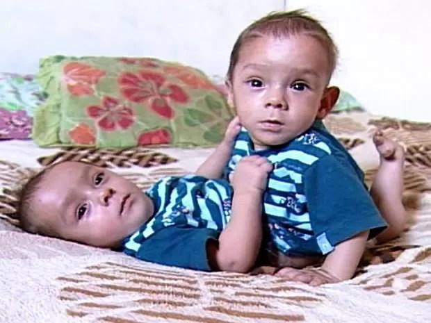 Siameses estão com oito meses e são unidos pelo abdômen. (Foto: Reprodução/ TVCA)