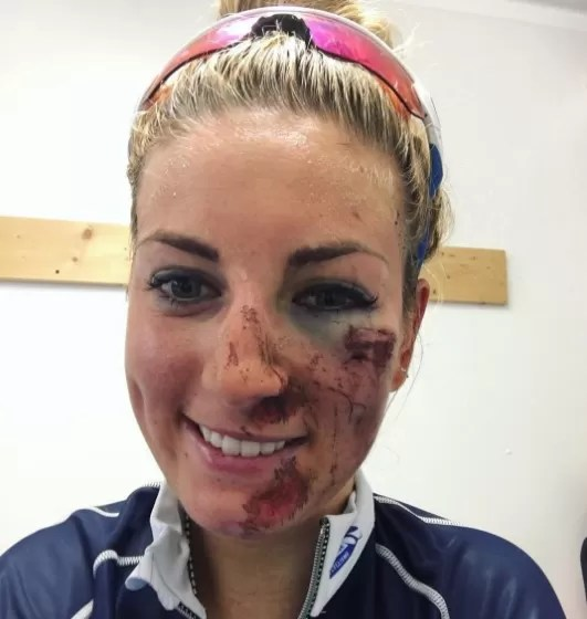 Pauline Prevot com o rosto ferido após levar tombo durante competição de mountain bike