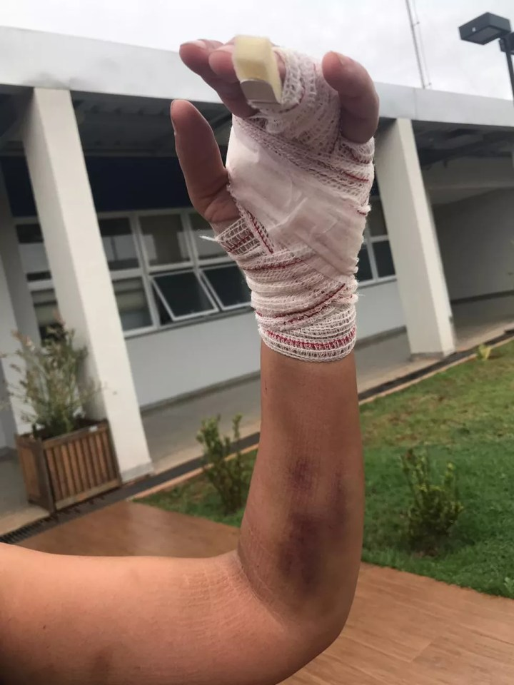 Mulher foi agredida ao flagrar companheiro com outra em MS — Foto: Cláudia Gaigher/TV Morena