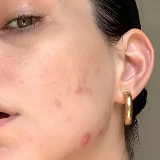 Julia Konrad mostra acne da mulher adulta (Foto: Reprodução Instagram)
