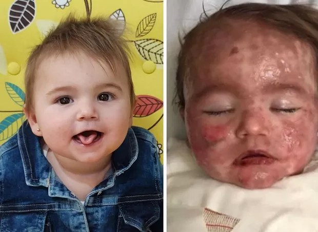 Helena before and after the condition that covered her skin with lesions (Photo: Reproduction/Facebook)
