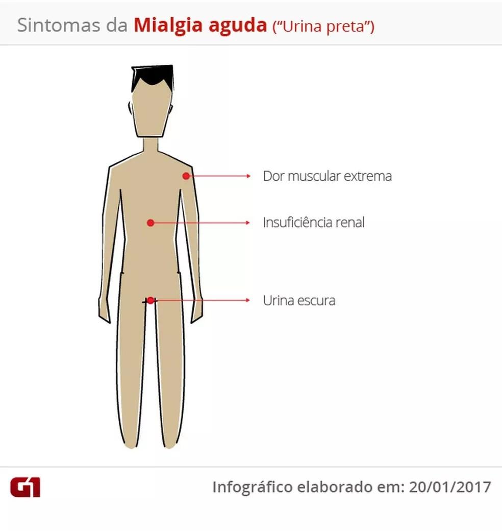 Infográfico Mialgia — Foto: Infográfico G1