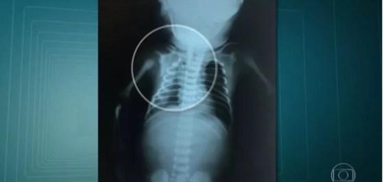 Bebê Arthur foi atingido no útero da mãe (Foto: Reprodução/TV Globo)