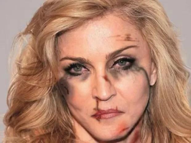 Cantora Madonna com hematomas para simbolizar a violência doméstica (Foto: Alexsandro Palombo)
