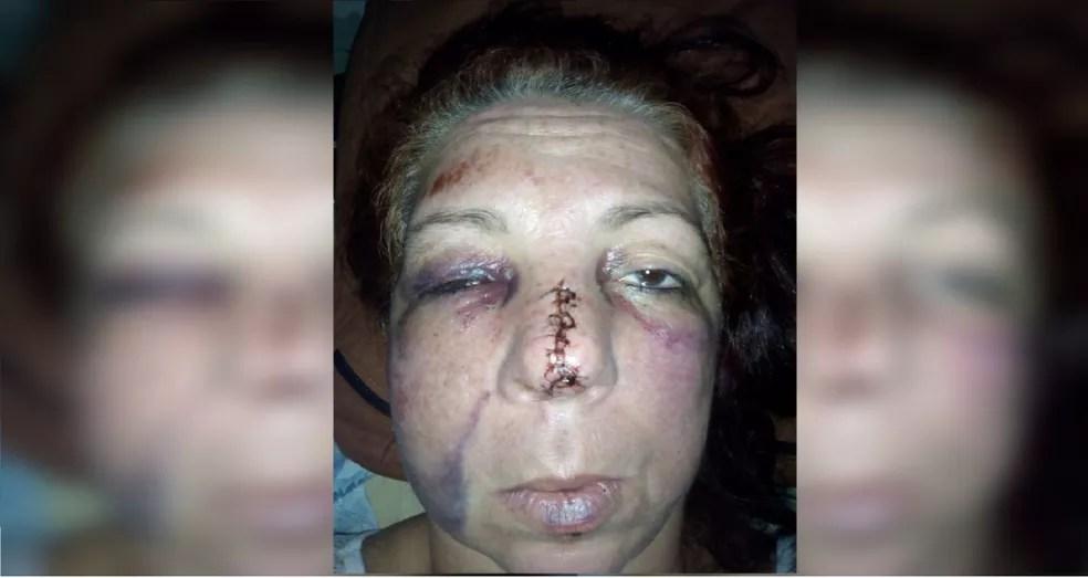 Vítima precisou dar pontos no nariz e ficou com o rosto inchado após as agressões em Bauru  — Foto: Arquivo pessoal
