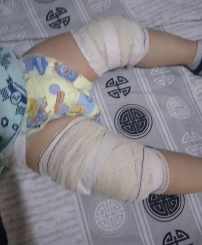 Bebê de 11 meses sofreu queimaduras e ficou com as pernas enfaixadas em Limeira — Foto: Arquivo pessoal