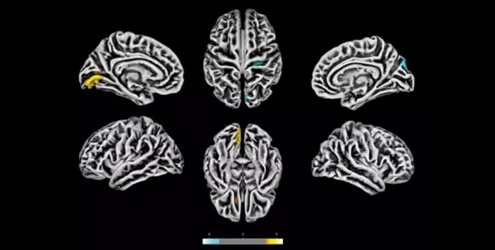 Exames de ressonância magnética feitos na Unicamp em 81 pacientes com sintomas neuropsiquiátricos pós-COVID revelam alterações na estrutura do córtex cerebral. As áreas em amarelo apresentam redução na espessura cortical. As marcas azuis correspondem a áreas com espessura aumentada — Foto: Divulgação