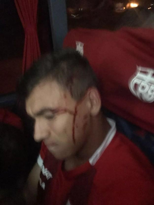 Atacante Ruan, do CRB, acabou sofrendo leve ferimento após o ataque ao ônibus do clube (Foto: Assessoria CRB)