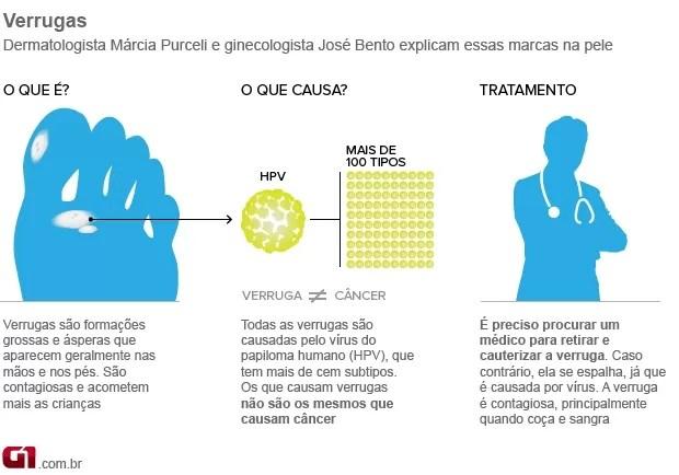 info verrugas (Foto: arte / G1)