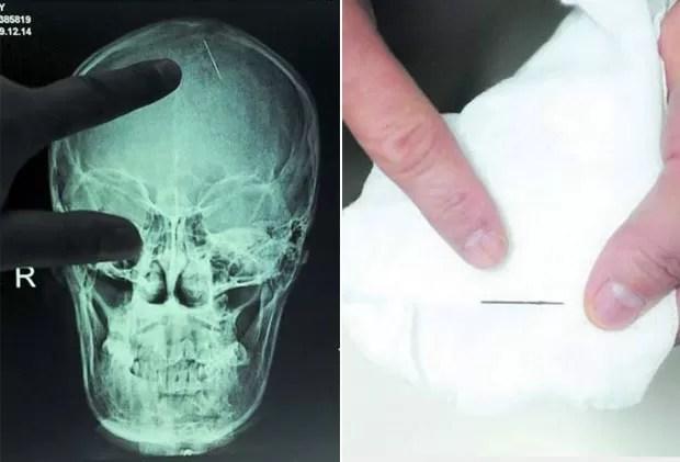Imagem de raio-X mostra uma agulha de 2,5 centímetros que ficou por 20 anos encravada na cabeça da chinesa Zhou Chaozheng, que mora na província de Hunan. Ela passou por uma cirurgia em outubro de 2010 após começar a sentir dores de cabeça depois de dar à luz (Foto: Barcroft Media/Getty Images)