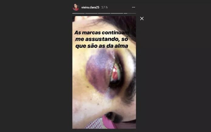 Jovem publicou imagens com marcas de agressão no rosto que teria sido provocada por ex (Foto: Reprodução/ Instagram)
