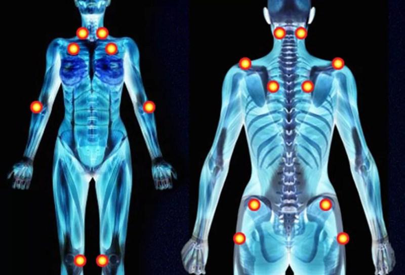 Pontos de dores causadas pela fibromialgia  — Foto: IFSC/USP