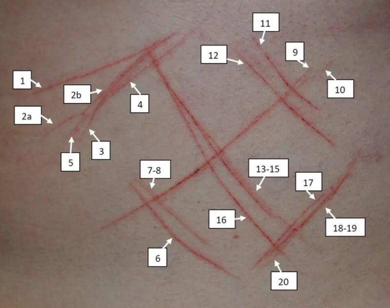 """Foram analisados 23 traços no corpo da jovem. Em alguns deles, a perícia diz que corresponderam a """"arranhões"""". — Foto: Reprodução"""
