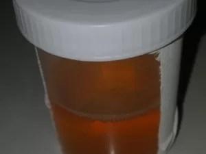 Urina de Marilene Soares (Foto: Marlene Soares/Arquivo Pessoal)