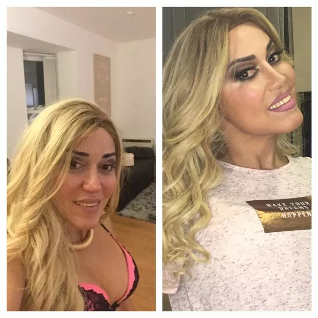 Mulher Abacaxi antes e depois (Foto: Divulgação/ Arquivo pessoal)