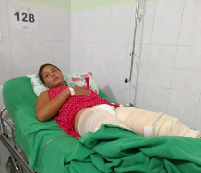 Mulher está internada com queimaduras de terceiro grau e sem previsão — Foto: Arquivo pessoal