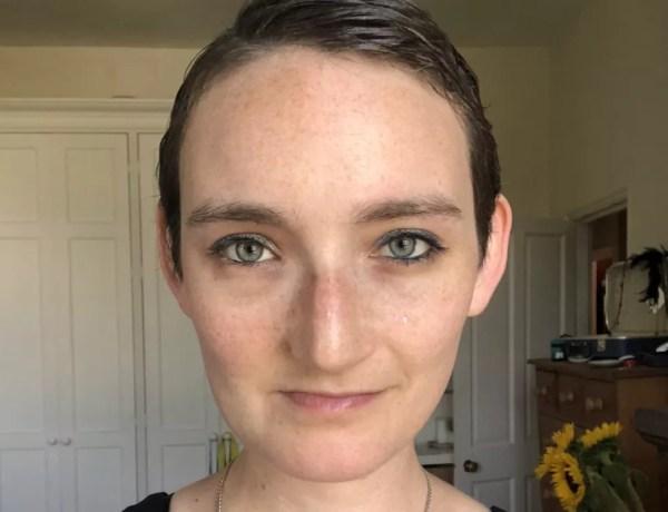 Depois da cirugia, Jen Taylor precisou aprender a mastigar novamente — Foto: Jen Taylor/Arquivo Pessoal/BBC