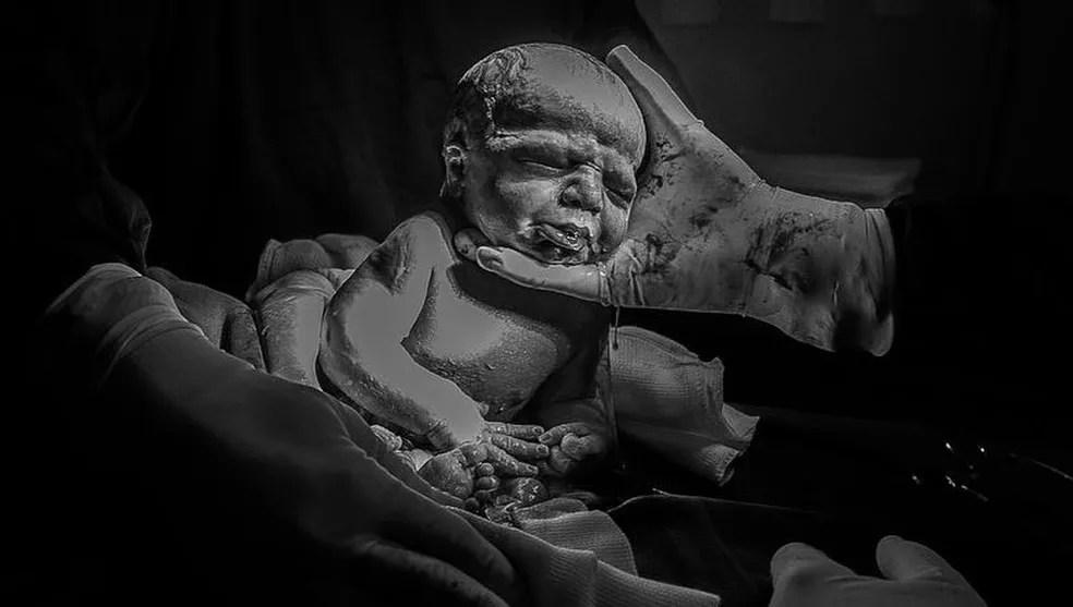 Médico estourou a bolsa amniótica e Davi Lucca chorou pela 1ª vez — Foto: Vanuza Lolatto/Reprodução